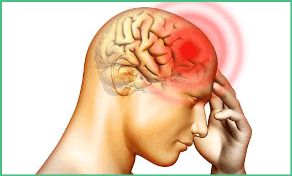 How To Get Rid Of A Headache In 60 Seconds